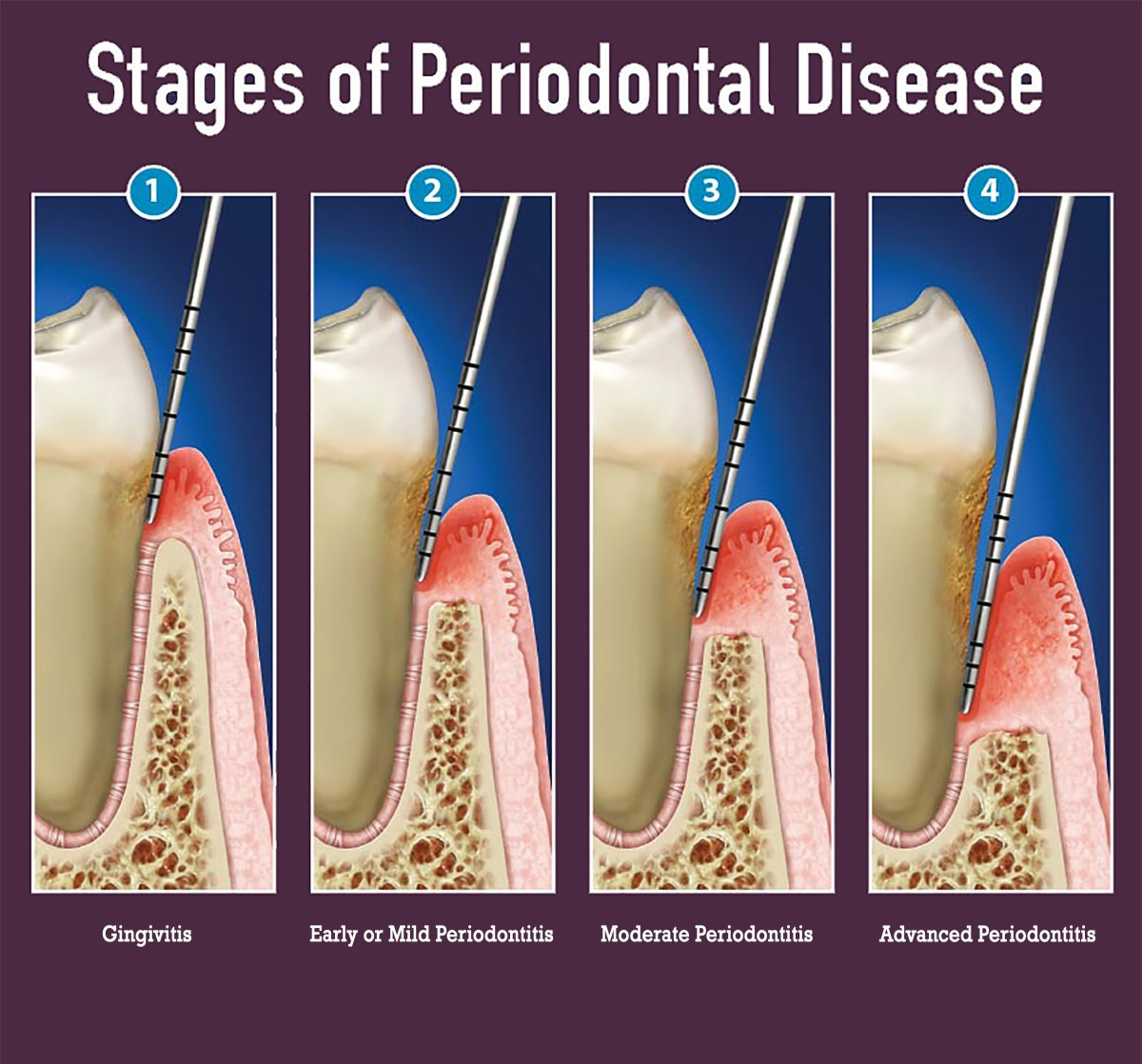 image-773501-graphic-2-stages-of-periodontitis.jpg